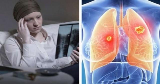 le cancer du poumon est beaucoup plus mortel chez les femmes newsmag. Black Bedroom Furniture Sets. Home Design Ideas
