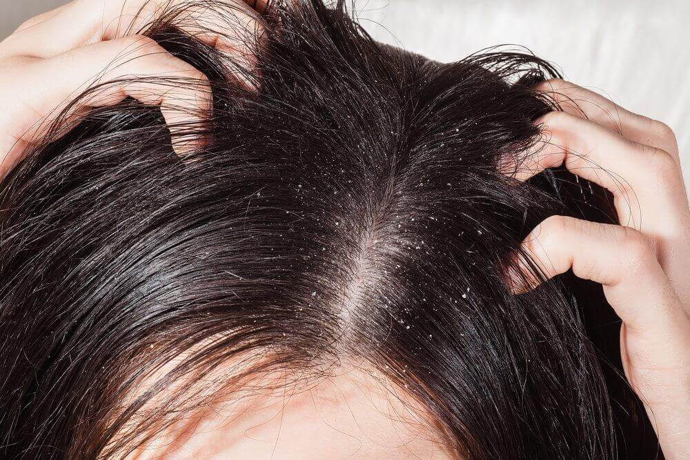 10 raisons pour lesquelles vous pouvez perdre vos cheveux newsmag. Black Bedroom Furniture Sets. Home Design Ideas