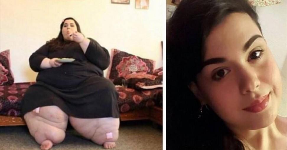 Elle pesait 300 kilos maintenant regardez sa for Avoir une maison