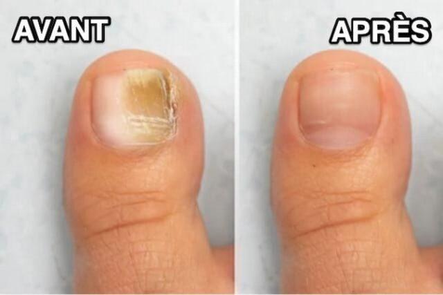 Solution naturelle au bicarbonate contre les ongles jaunes et épais