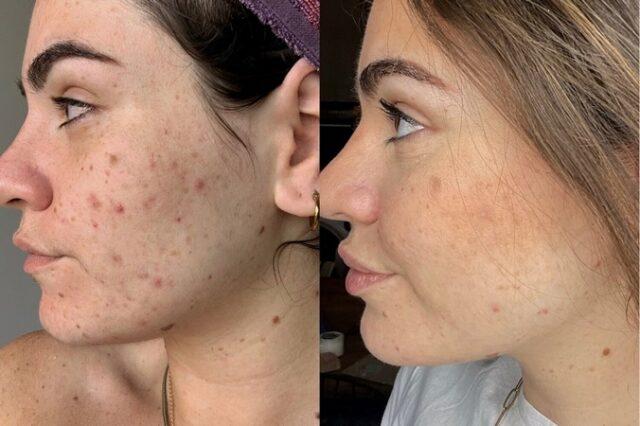 Découvrez les meilleures huiles pour la peau sujette à l'acné