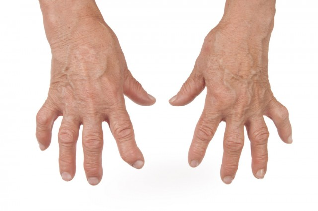 Bienfaits Boswellia - Arthrite du genou, ou gonArthrite : vers un traitement ...