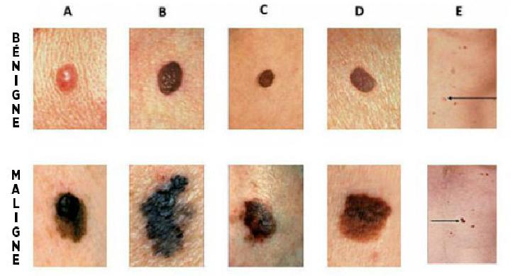 comment reconna tre les signes d un cancer de la peau un geste qui peut vous sauver la vie. Black Bedroom Furniture Sets. Home Design Ideas